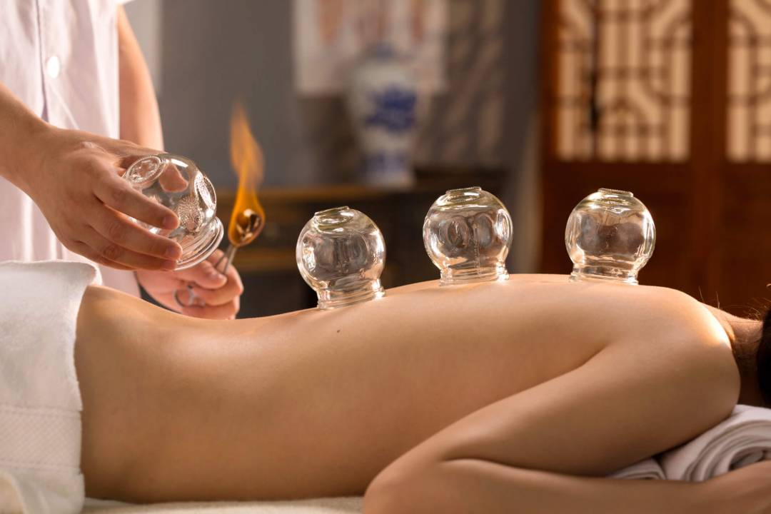 what is cupping therapy