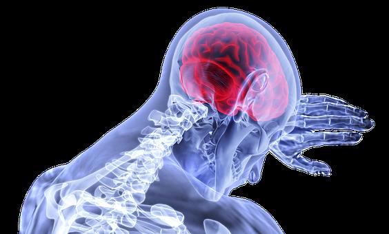Fibromyalgia and migraines