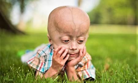 premature aging syndrome - progeria